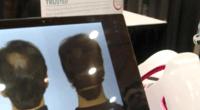 CES2016:可以治疗脱发的耳机igrow